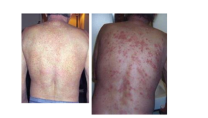 chloramines skin irritations